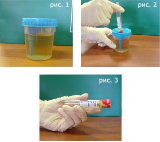 Подготовка к сдаче анализов крови, мочи, кала, спермограмма, гастропанель, УЗИ